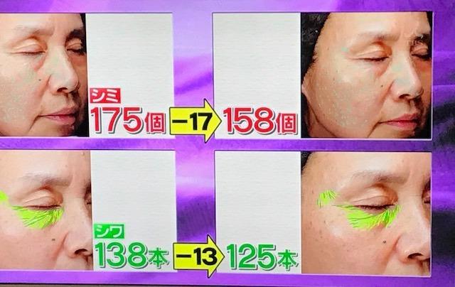 シナモン毛細血管17.jpg