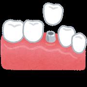 teeth_implant.png