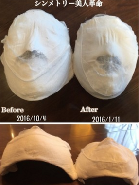 BeforeAfter石膏