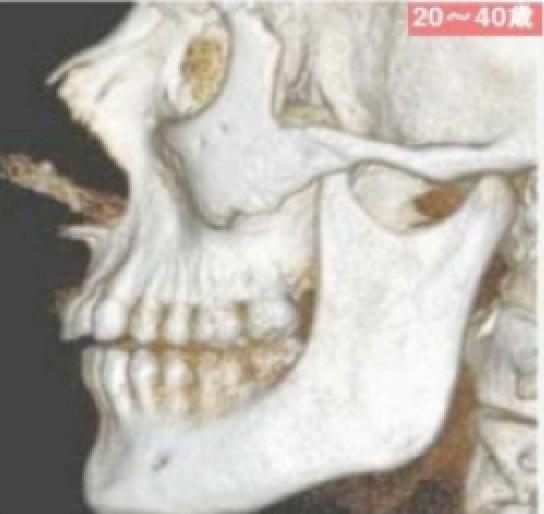頭蓋骨老化