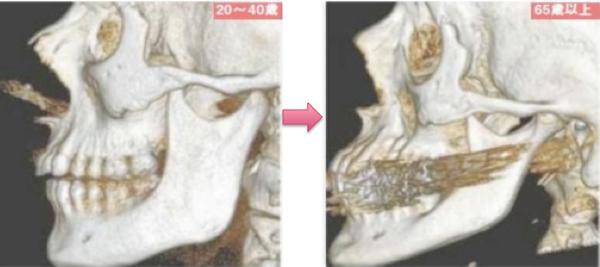 """アメリカの美容医療に関する医学雑誌""""PlasticandReconstructiveSurgeryJounal""""2011年1月号より骨の老化"""