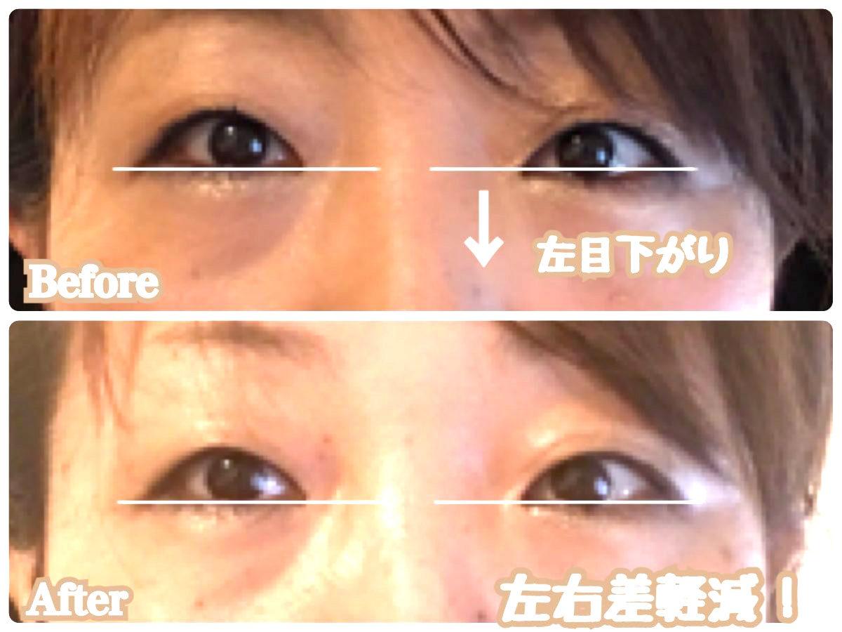目左右非対称.jpg