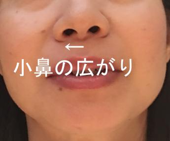 小鼻の広.png