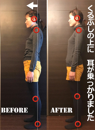 姿勢のBeforeafter.png