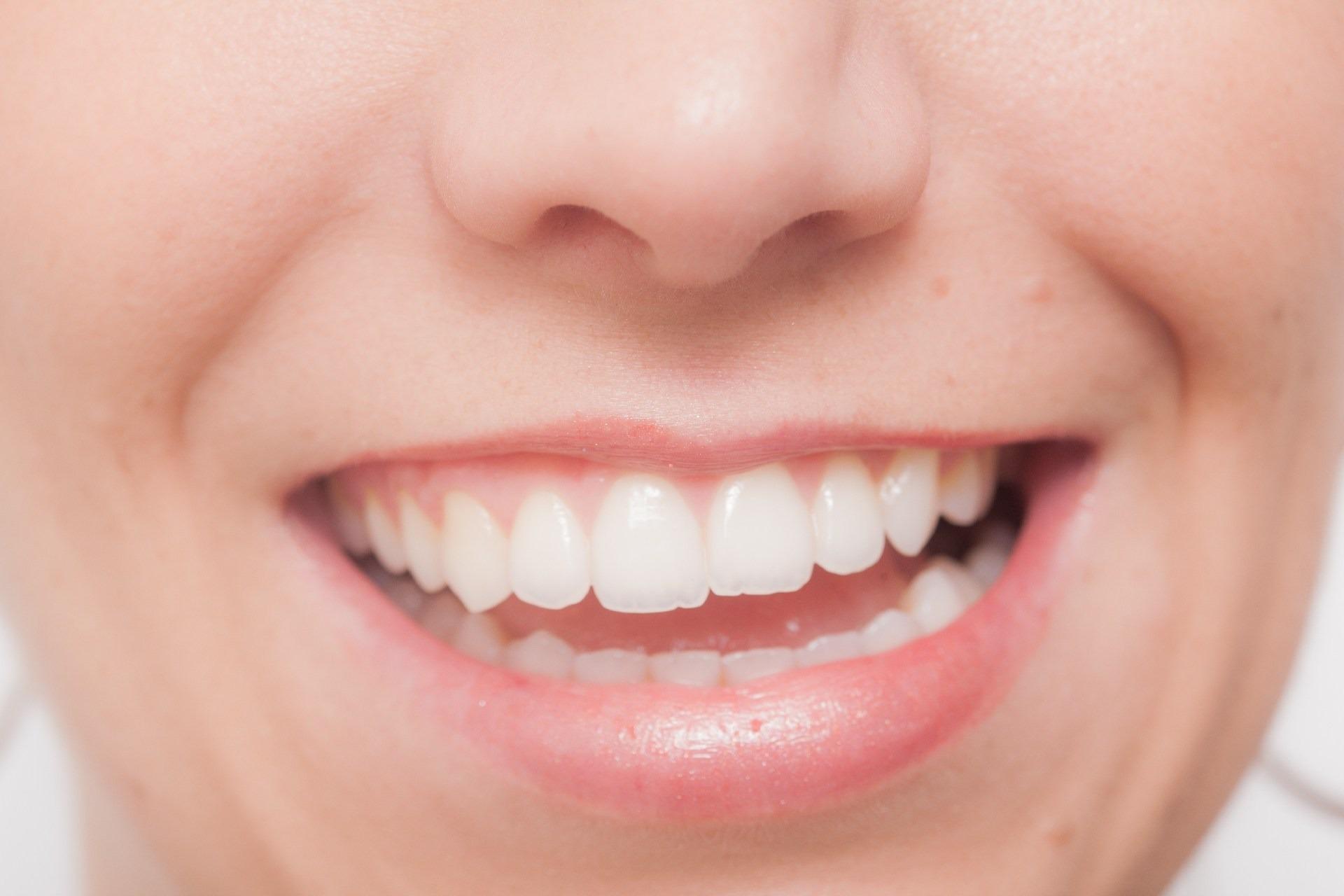 笑顔ゆがみ2.jpg