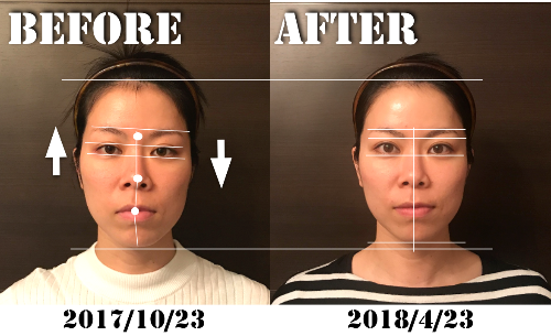 有安愛さんBeforeafter.png
