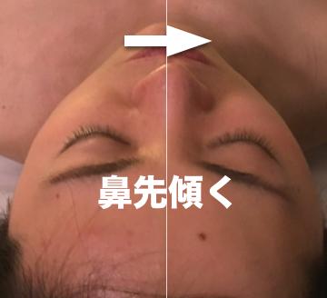 鼻の傾き.png