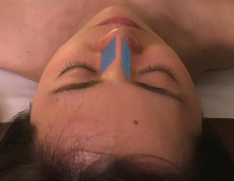 鼻の傾斜の角度.png
