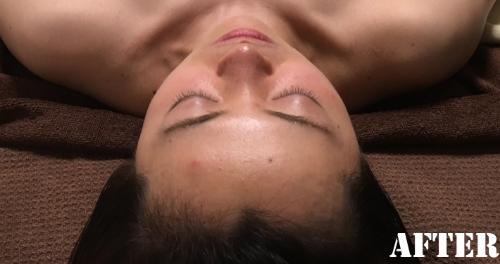 鼻の傾斜整う.png