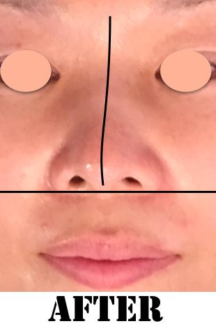 鼻1after.png