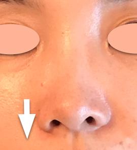 鼻3.png