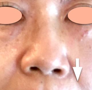 鼻4.png