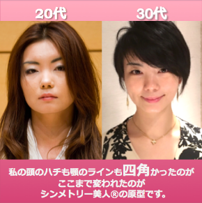 Roebeforeafter20代30代.png
