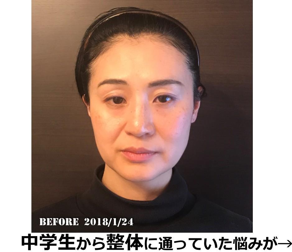 紙芝居BeforeAfter赤澤1.png