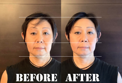 Beforeafter白澤様正面.png