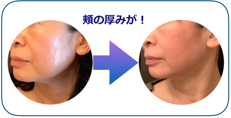 頬の厚みBEFOREAfTER.png