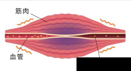 筋肉と血流.png