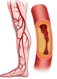 脚の血管.png