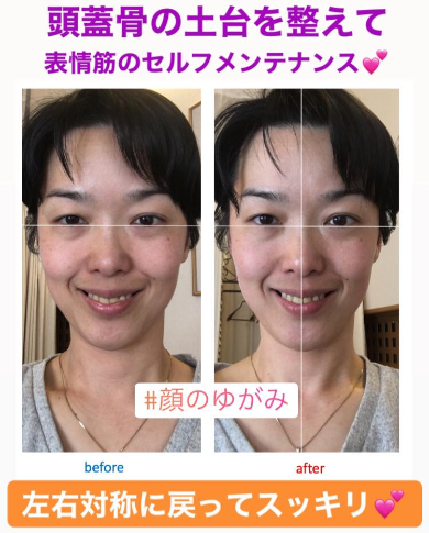 BeforeAfter西村さん.jpg
