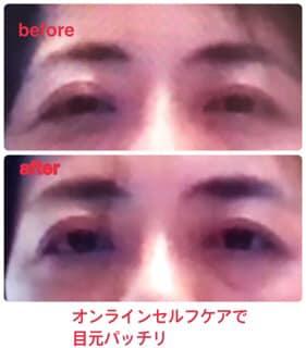 Beforeafter目オンライン 渡辺さんのお客様.jpg