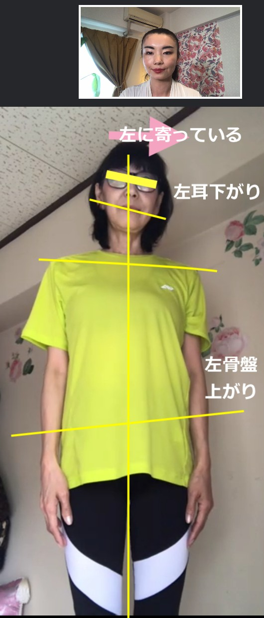 Before左寄.png