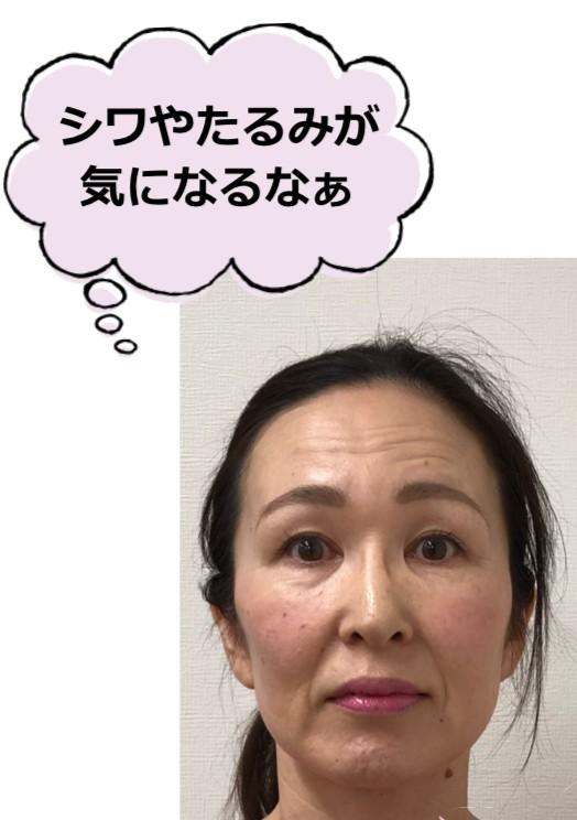嶋崎明美さんシワの悩み.png