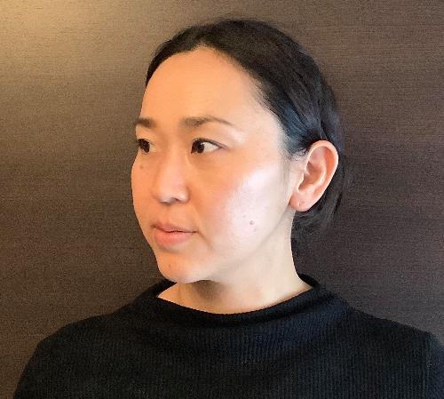 智恵子さんBefore.jpg