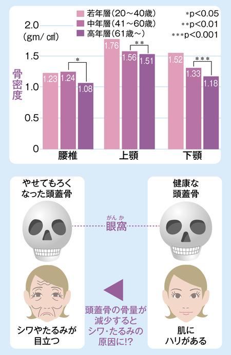目のくぼみ.jpg