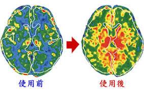 脳活性2.jpg
