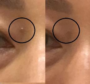 0702と0723目の上のポチと目の下のホクロメルマガ用.jpg