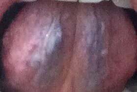 瘀血2.jpg
