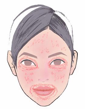 顔色赤目の周り.jpg
