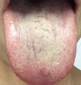 舌苔 湿.jpg